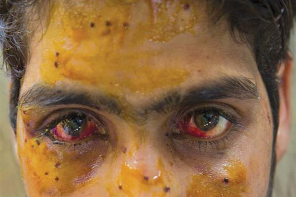 Pellet Furry : Faizan loss one eye in March, 2nd eyes in August | KNO